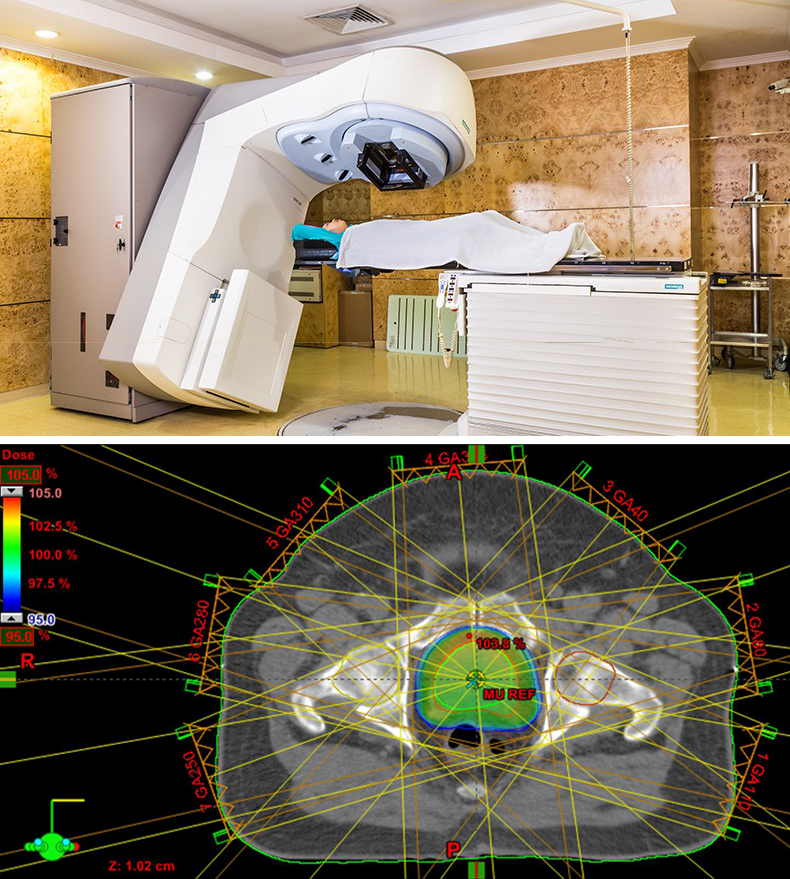 Fig RadiationTherapy