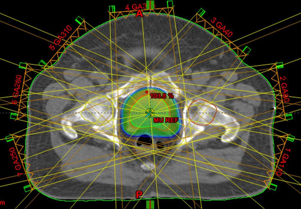 3D Medical Radiation Dose Mapping